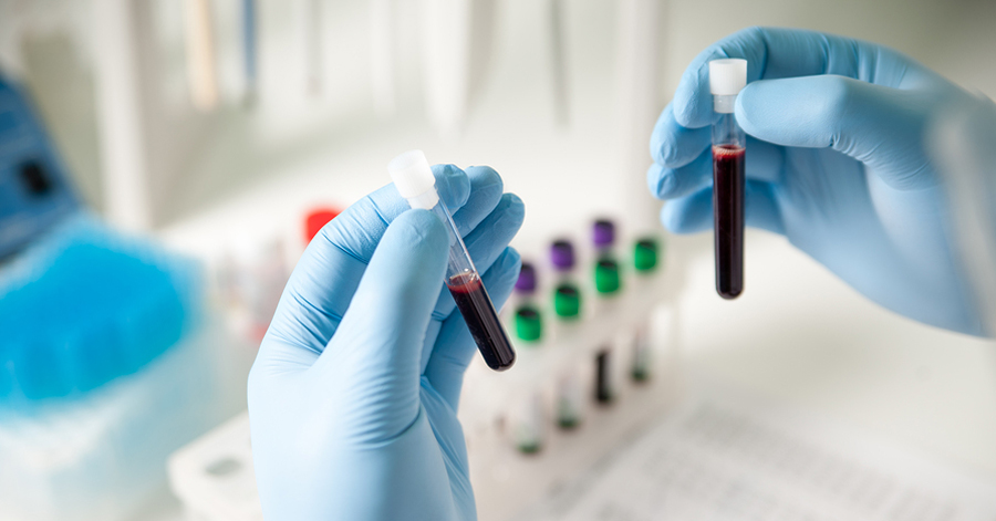 Blood Test for Alzheimer's Disease